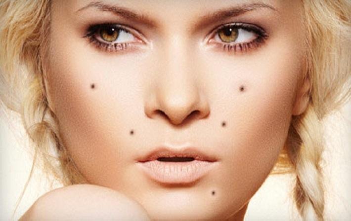 moles1.jpg