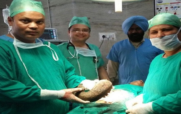 rare_surgery_of_girl_at_ludhiana_1483426387.jpg